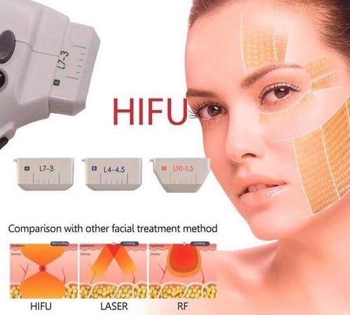 HIFU kasvojenkohotus